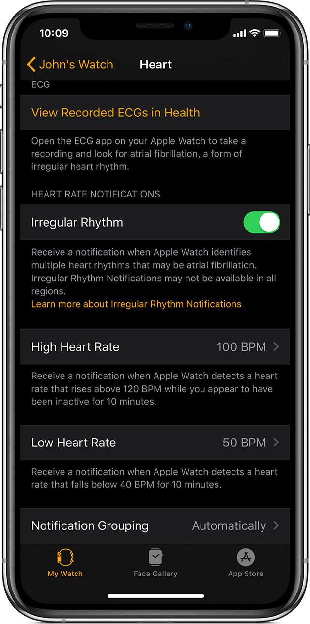 Heart settings on iPhone.